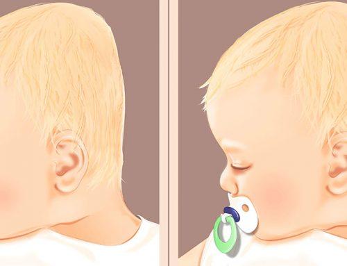 Flacher Hinterkopf bei Babys